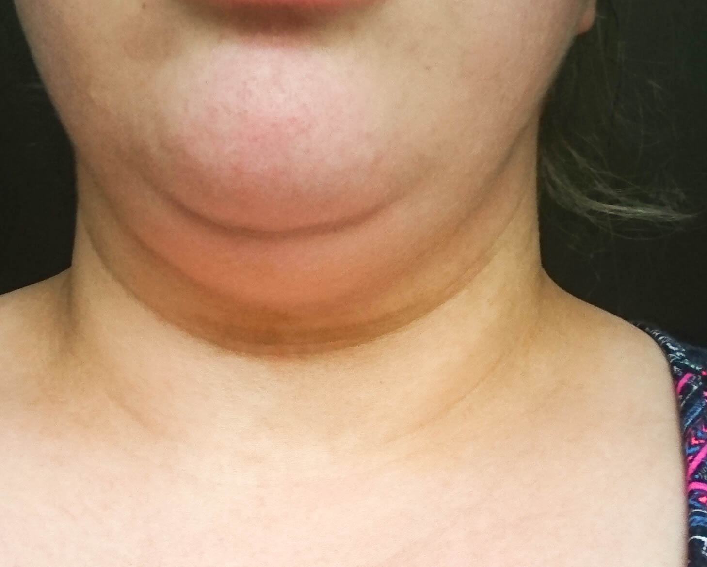 before Chin Up Mask Non-Surgical Face Lift Review