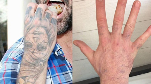 Have You Considered Laser Tattoo Removal before and after of a hand tattoo that has received treatment